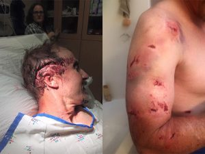 Todd Orr Grizzly Bear attack aftermath